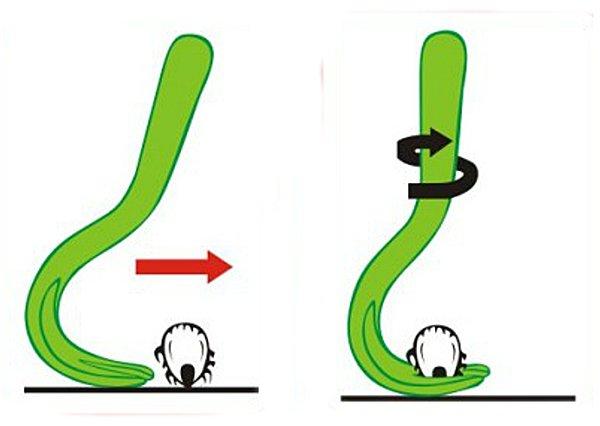 Выкручивание клеща специальными щипцами