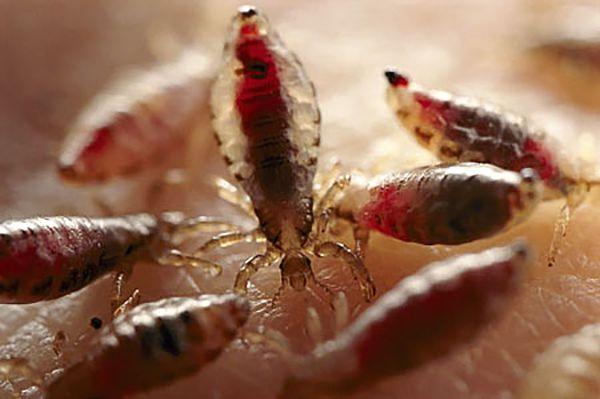 Фото бельевых вшей