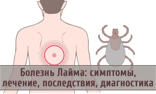 Клещевой боррелиоз болезнь лайма симптомы последствия