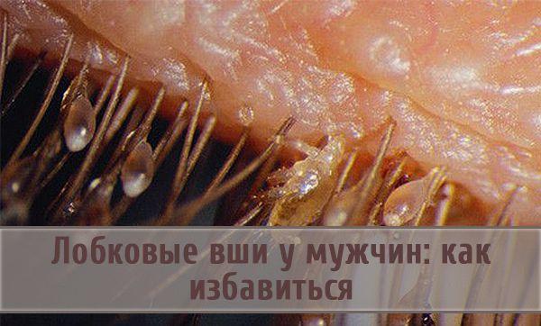 Заражение лобковыми вшами у мужчин и методы их уничтожения