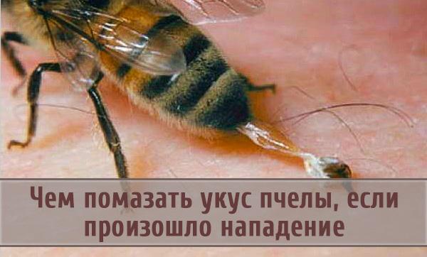 Чем можно намазать место укуса пчелы для снятия реакции на пчелиный яд