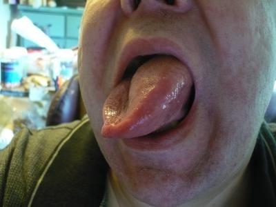 Оса укусила за язык - что делать в этой ситуации: http://vredinfo.ru/shershni-i-osyi/osy/osa-ukusila-za-yazyik