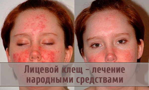 Как народными средствами лечить демодекоз на лице