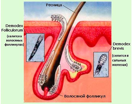 народные средства лечения от паразитов у человека