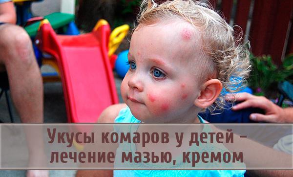 Как и чем лечить укусы комаров у маленьких детей