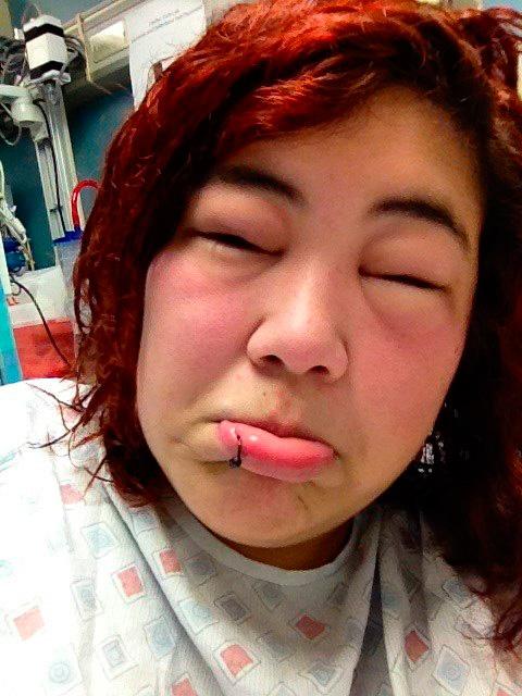 При ужалении в лоб или в нос сильно отекает верхняя часть лица
