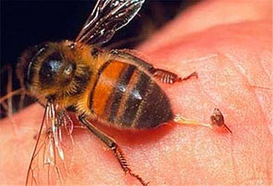 Лечение пчелиными укусами основано собственно на действии яда насекомых, способного вызывать аллергические реакции