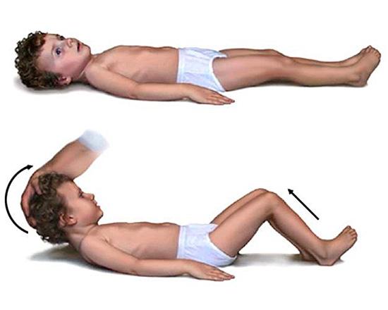 Ригидность мышц при менингеальной форме заключается в невозможности наклонить голову; при сгибании шеи сгибаются колени