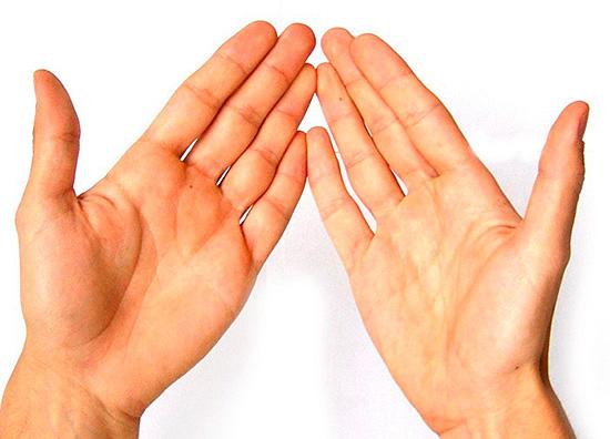 Одним из признаков является повышенная потливость (гипергидроз)