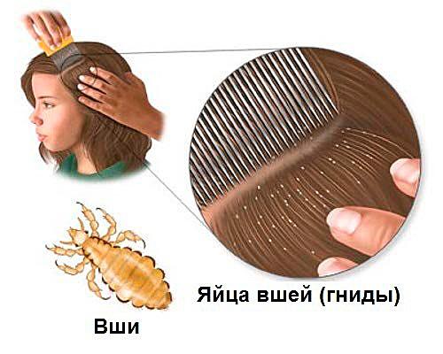 Обнаружив насекомых или их яйца, нужно немедленно их выводить