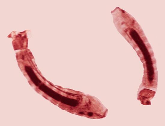 Личинку паразита сложно разглядеть в воде – она очень маленькая и почти полностью прозрачная