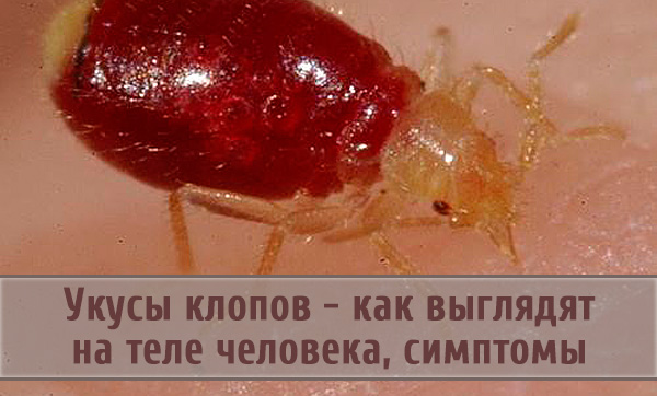 Как выглядят укусы клопов и сами насекомые