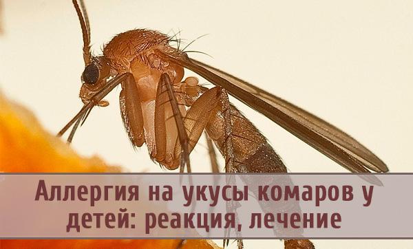 Аллергия на укусы комаров: симптомы, лечение и меры предосторожности
