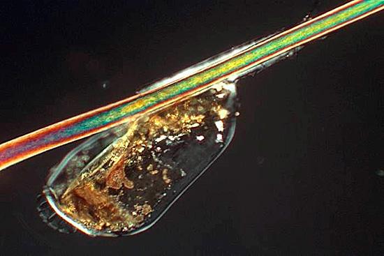 Так выглядит яйцо вшей под микроскопом