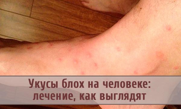 Чем опасны блошиные укусы и как отличить их от признаков аллергии и инфекционных заболеваний