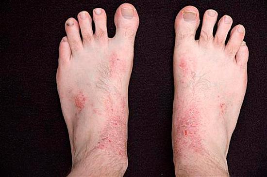 Если расчесывать укушенные места, может присоединиться дополнительно инфекция