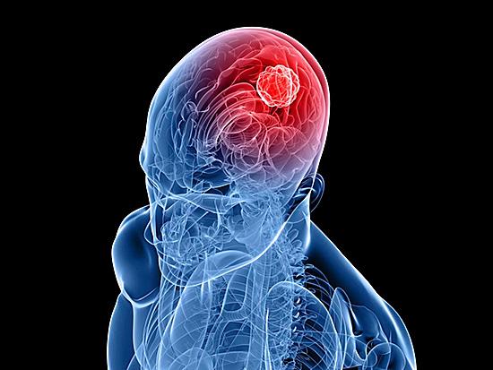 Вирус поражает серое вещество головного мозга