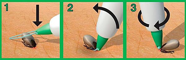 Есть специальные приспособления для удаления присосавшегося паразита