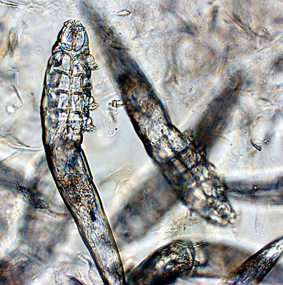 Микроскопический паразит приносит массу неудобств своему «хозяину»