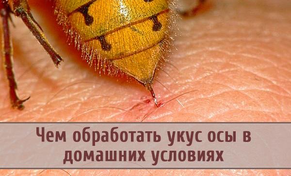 Чем и как можно обработать укус осы?