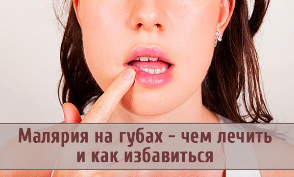 Как быстро справиться с малярией на губах