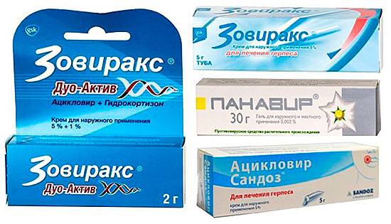 Мазей и кремов от герпеса предложено в аптеках очень много