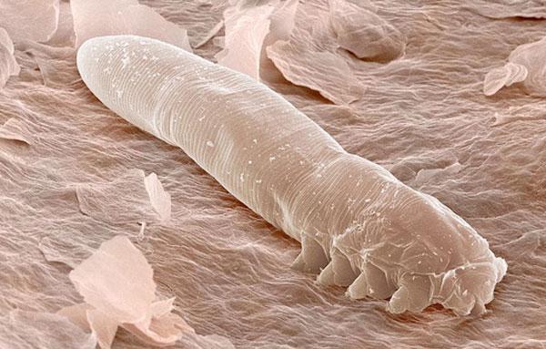 Демодекс под микроскопом выглядит как продолговатое существо