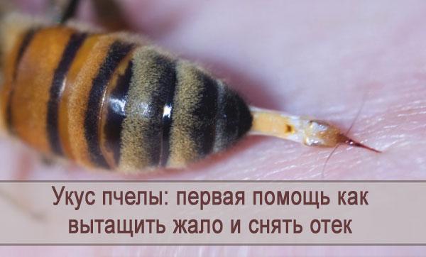 Первая помощь при укусе пчелы:  как вытащить жало, что помогает снять отек