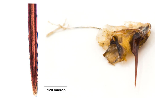 Жало, оторвавшееся от пчелы после укуса оно же при увеличении