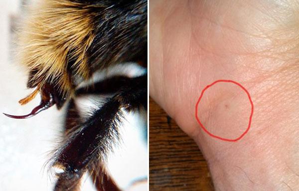 Внешний вид жала шмеля и укуса в руку