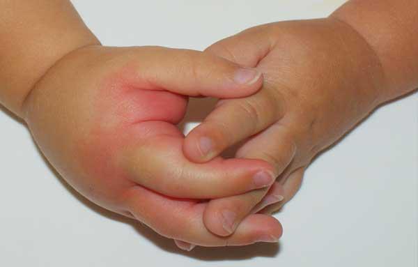 Оса укусила ребенка в руку