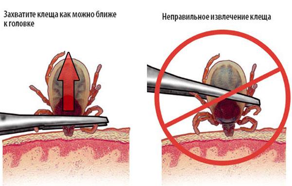 Извлечение иксодового клеща пинцетом