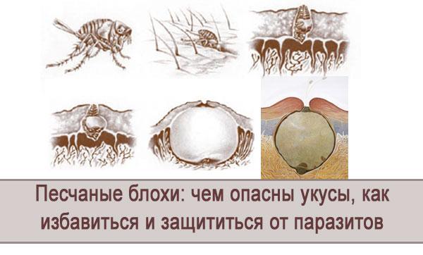 Чем опасны укусы песчаных блох, как избавиться и защититься от паразитов