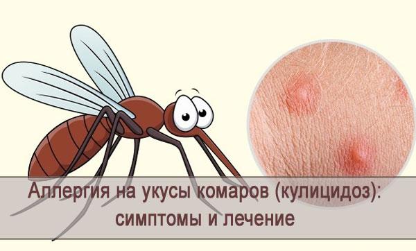 Симптомы аллергии на укусы комаров (кулицидоза), лечение