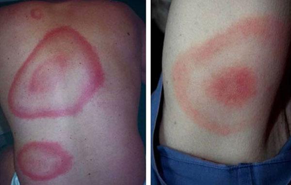 Изменения кожи при болезни Лайма
