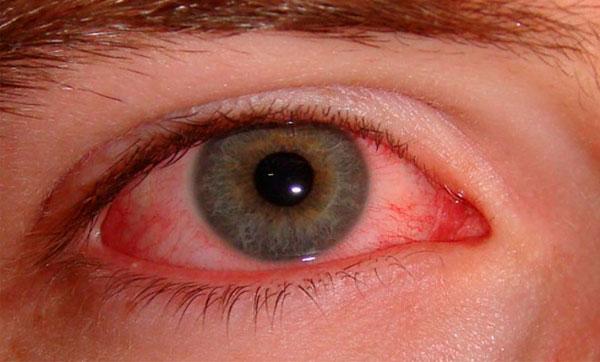 Глазной клещ (демодекс) или ресничный клещ: симптомы и лечение