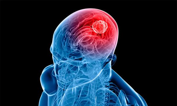 энцефалит поражает мозг