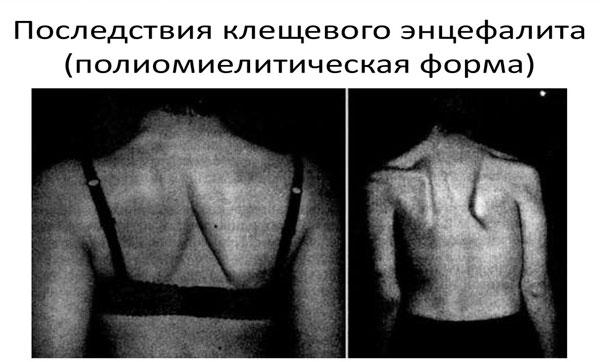 Полиомиелитическая форма