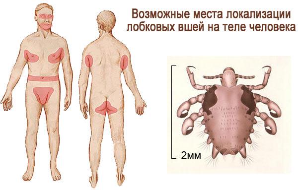 места локализации лобковых вшей